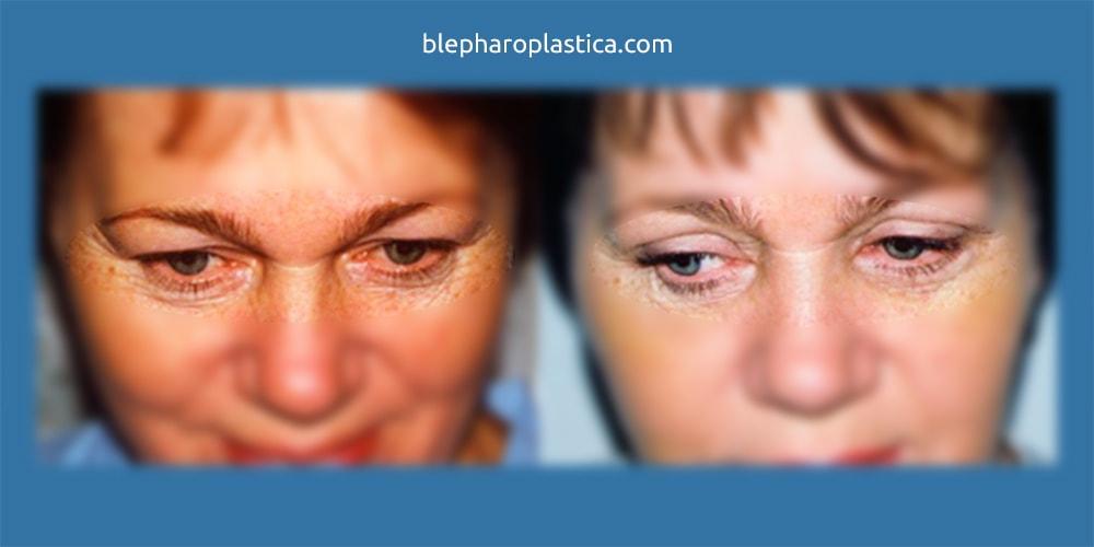 Блефаропластика: фото ДО и ПОСЛЕ