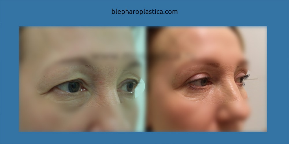 фото до и после операции (хирург Гварамия А.А.)